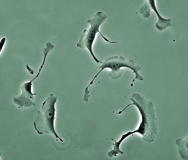 Mengubah sel kulit menjadi sel saraf