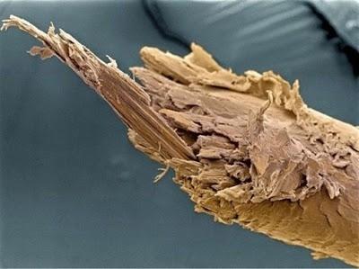 Foto-foto mikroskop elektron (2) : Sel dan jaringan makhluk hidup 3