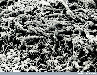 Foto-foto mikroskop elektron (2) : Sel dan jaringan makhluk hidup 9