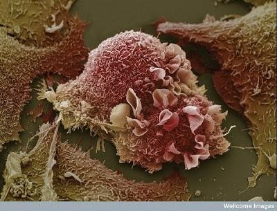 Foto-foto mikroskop elektron (2) : Sel dan jaringan makhluk hidup 11