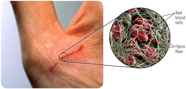 Sistem Transportasi (3) : Darah manusia 4