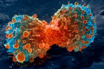 Foto-foto hasil scanning mikroskop elektron 4