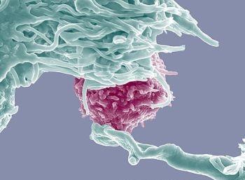 Foto-foto hasil scanning mikroskop elektron 10