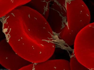 Foto-foto hasil scanning mikroskop elektron 15