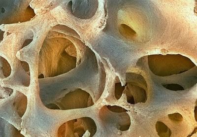 Foto-foto mikroskop elektron (1) : Sel dan jaringan makhluk hidup 3