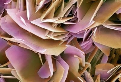 Foto-foto mikroskop elektron (1) : Sel dan jaringan makhluk hidup 4