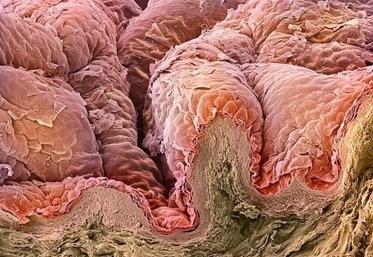 Foto-foto mikroskop elektron (1) : Sel dan jaringan makhluk hidup
