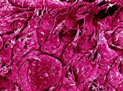 Foto-foto hasil scanning mikroskop elektron