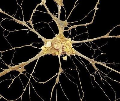 Foto-foto mikroskop elektron (1) : Sel dan jaringan makhluk hidup 10