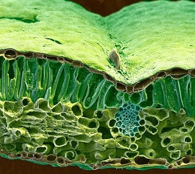 Foto-foto mikroskop elektron (1) : Sel dan jaringan makhluk hidup 11