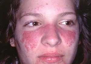 Lupus : Penyakit dengan seribu wajah