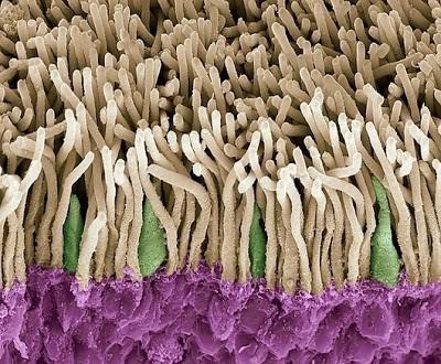 Foto-foto mikroskop elektron (1) : Sel dan jaringan makhluk hidup 6