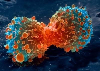 Foto-foto mikroskop elektron (1) : Sel dan jaringan makhluk hidup 8