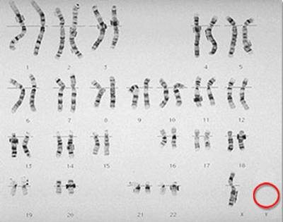 Mutasi 11