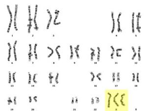 Mutasi 15